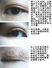 韩式栓眼皮手术术后图